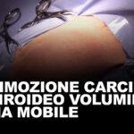 Rimozione carcinoma tiroideo voluminoso ma mobile