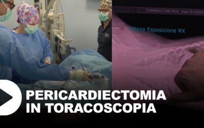 Pericardiectomia in toracoscopia