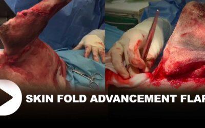 Skin Fold Advancement Flap