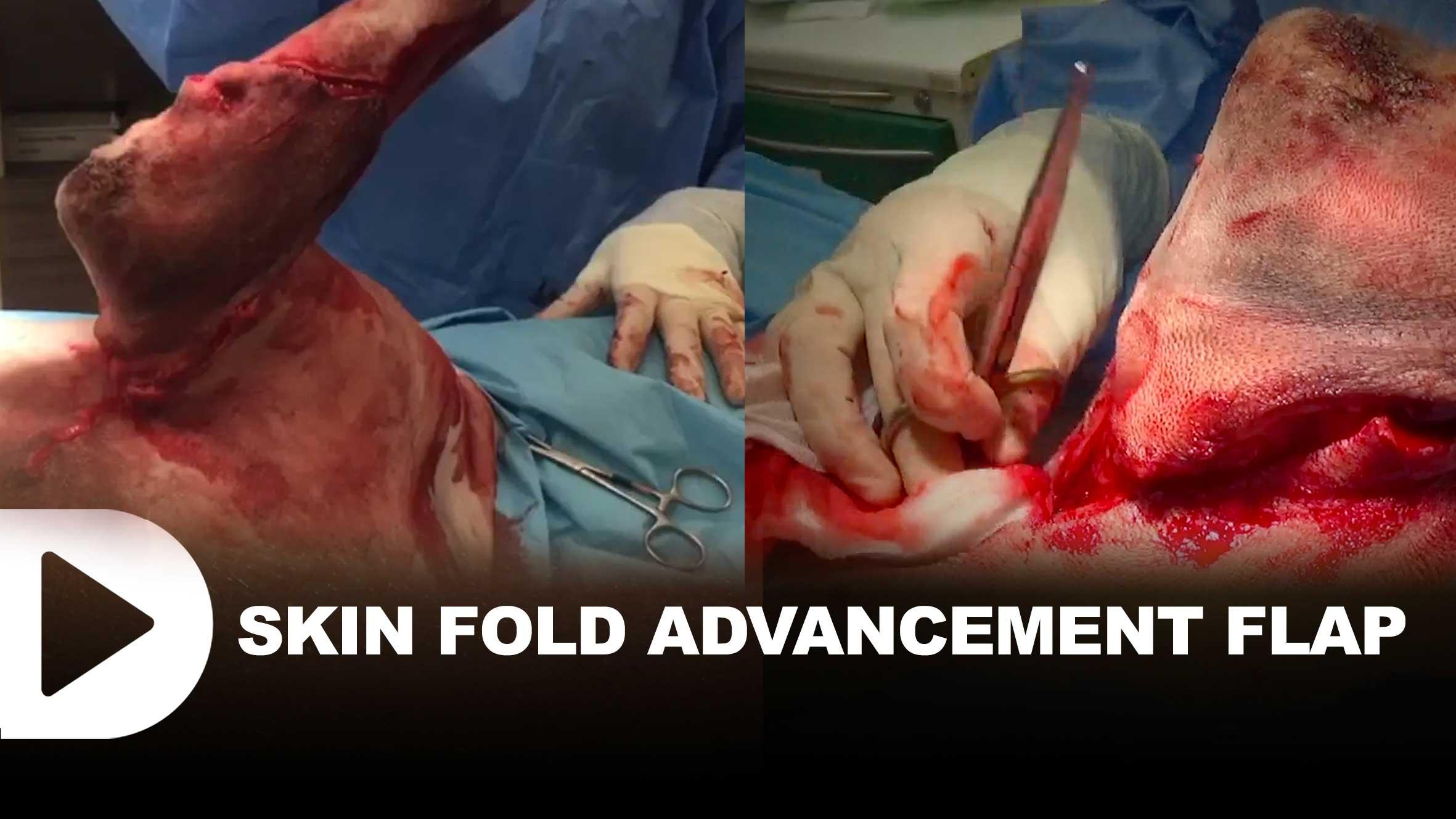 thumb-video-vet-Skin-Fold-Advancement-Flap