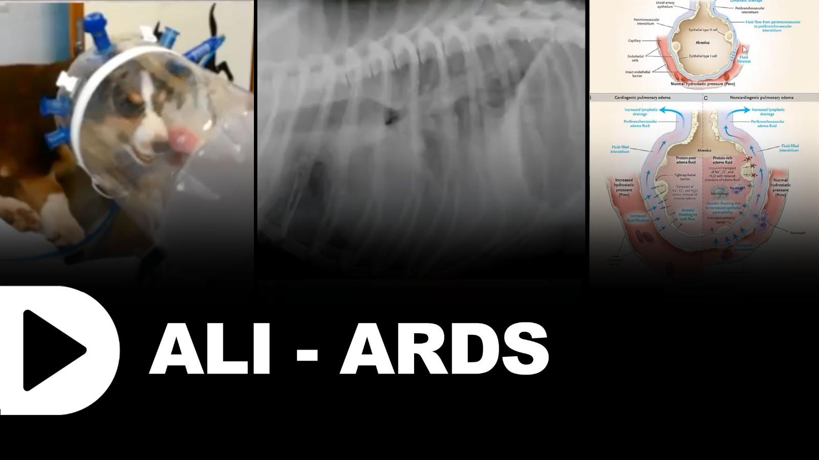Ali & ARDS