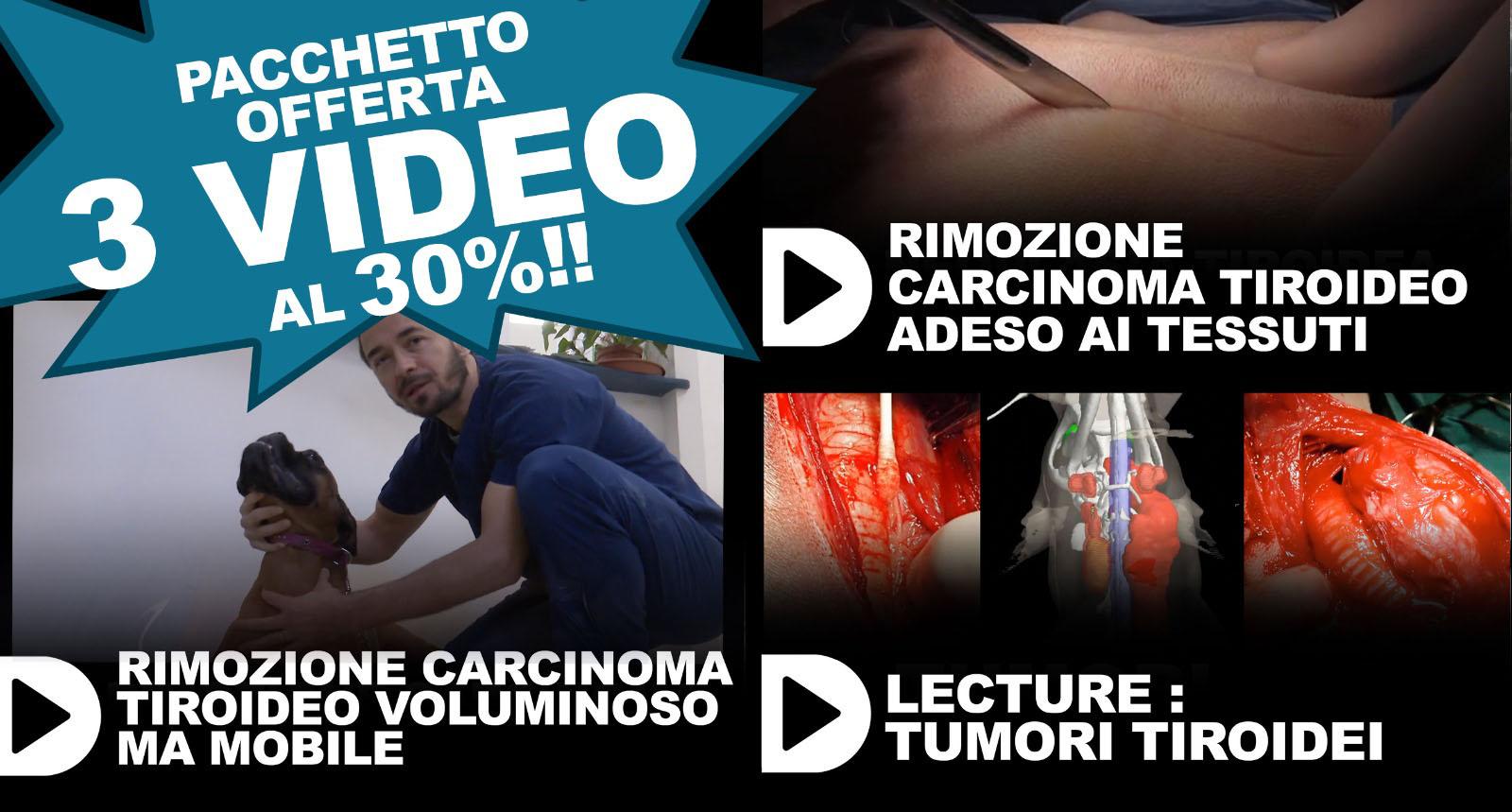 pacchetto carcinomi tiroidei