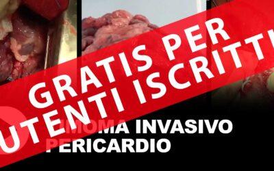 Timoma invasivo – pericardio (gratis per gli iscritti)