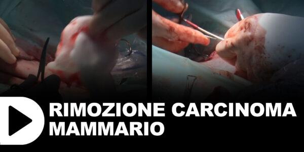 Rimozione carcinoma mammario