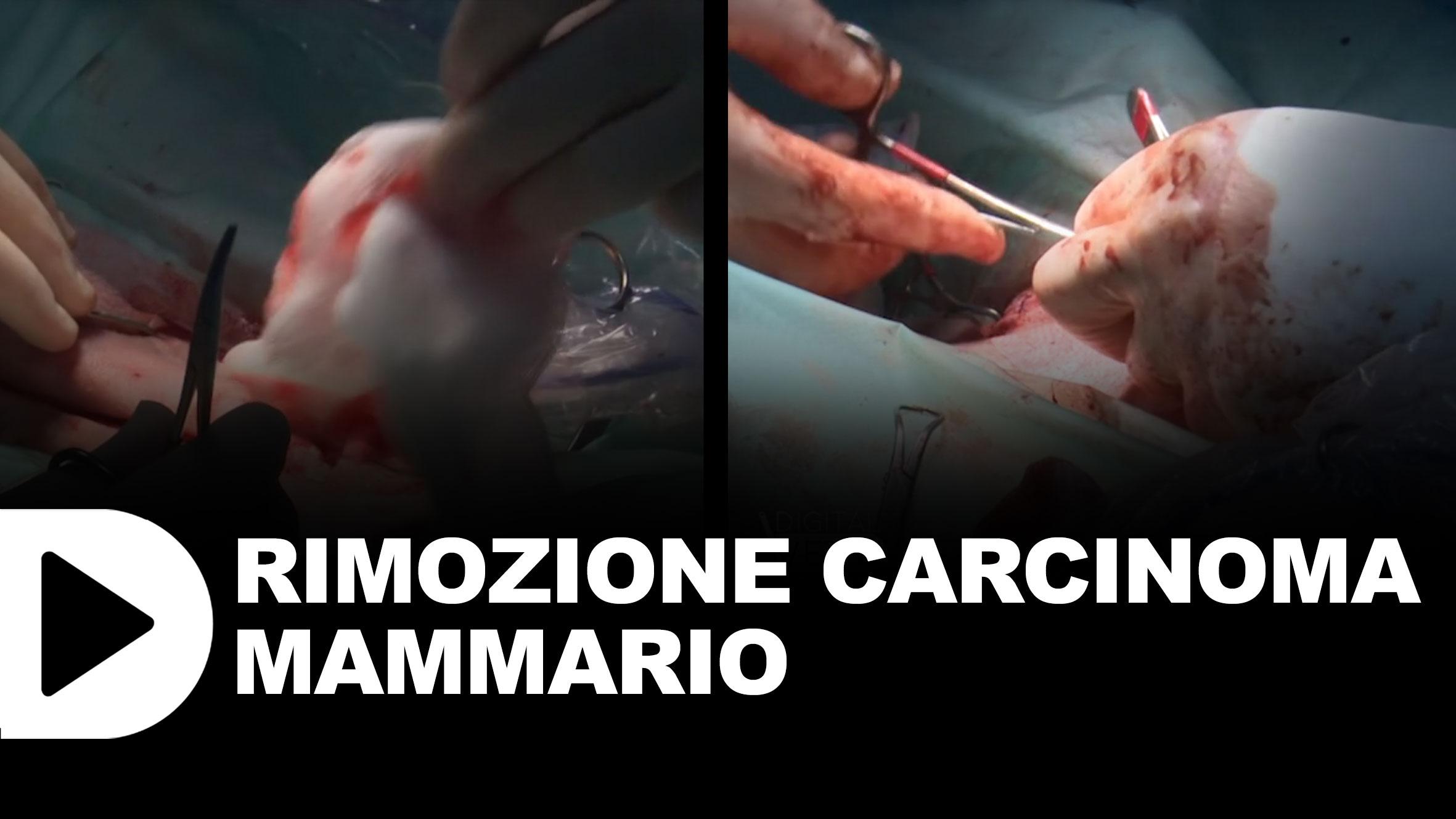 Rimozione-carcinoma-mammario
